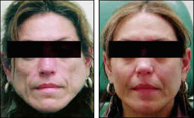 Hiv facial lipoatrophy